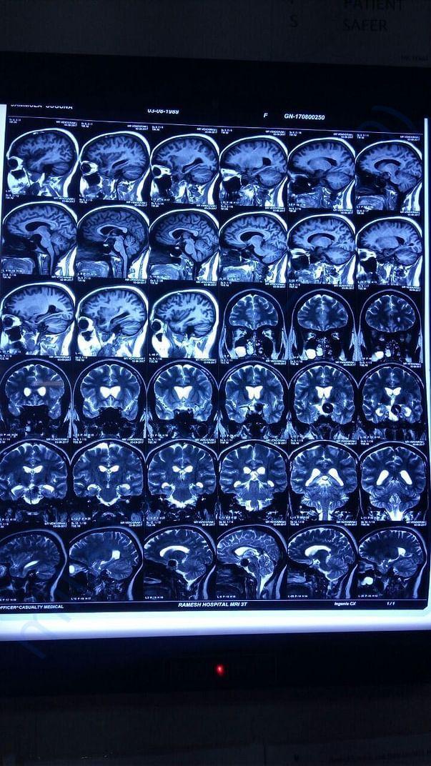 MRI Brain -4