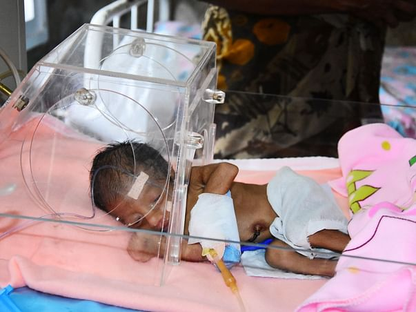 URGENT: 13 Days Old Baby Urgently Requires Heart Surgery (VSD)