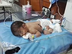 Help Baby Avyaan fight Pierre Robin Syndrome
