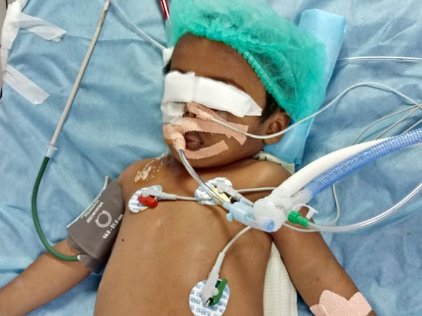 3-year-old Who Drank Paint Thinner Is Suffering From Organ Failure