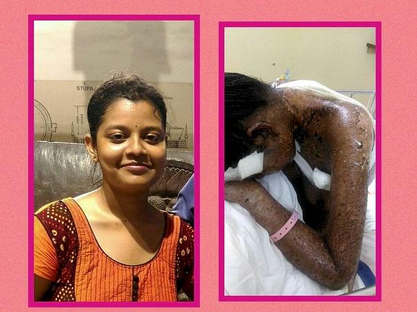 Help priyanka in fighting skin disease steven johnson syndrome