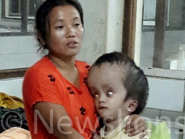 Little boy's head swells to size of watermelon - Help Boisang