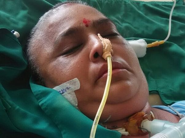Help Bhavna fight Brain hemorrhage