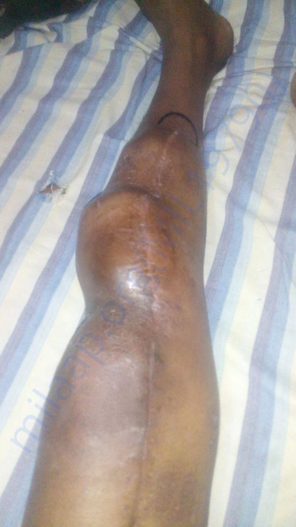Before amputation