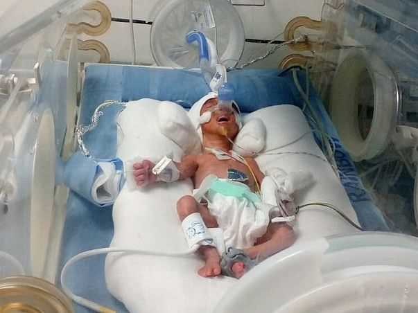 Require Help For New Born-Premature Babies (Twins)