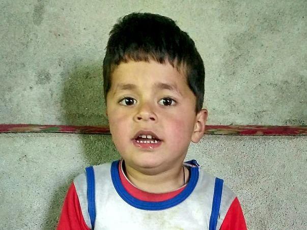 Help Uzair Javid To Undergo Treatment