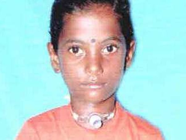 Help Sangeetha to recover from Severe Grade IV Subglotic Stenosis