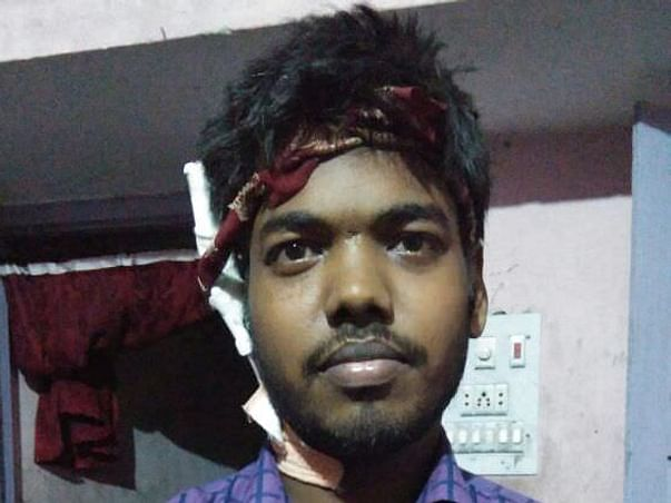 Help Our Friend Ashish To Get A Kidney Transplant