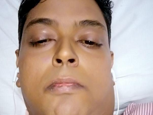 Help mandip get a new liver and a new life
