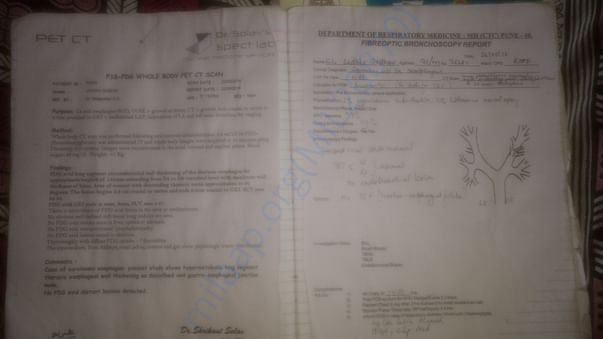 Treatment File