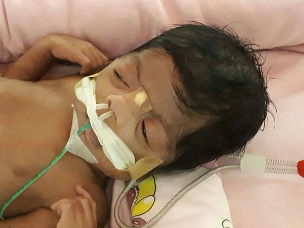 Help 2-Month-Old Samaira breathe on her own.