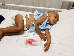 2-year-old Aniketh urgently needs your help to fight Liver Cancer
