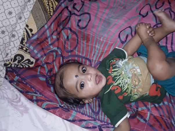 8-Month-Old Thanvik May Die Of Infections Without Your Help