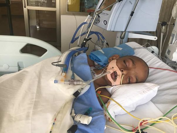 Help 4-year-old Neenu on life support fight severe Pneumonia