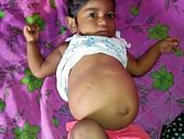 1-Year-Old Keerthana Is In The Last Stage Of Liver Disease And Her Every Waking Moment Is Filled With Pain