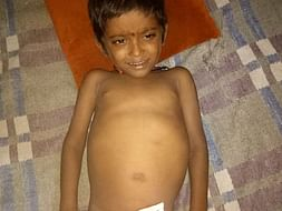 4-year-old Manish urgently needs a liver transplant to survive