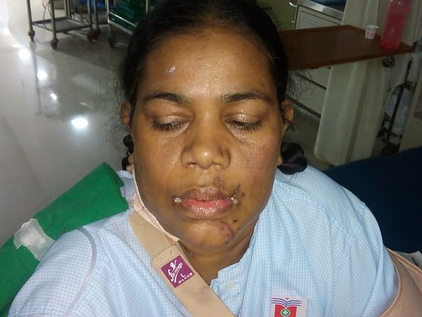 Help My Mother Who Met With A Train Accident