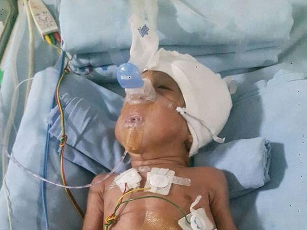 Save mokshith premature baby