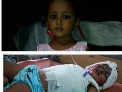 3-Year-Old Poornima Needs OurHelp