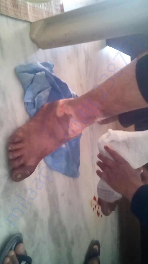 pictures of first aid treatment