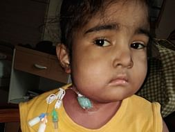 Please Help Us In Saving 4 Year Old Baby Gayathri