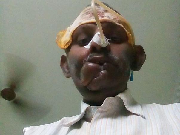 Help Venkat Fight Mouth Cancer