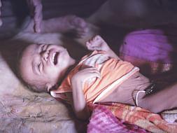 Help Melghat Childrens Fight Malnutrition