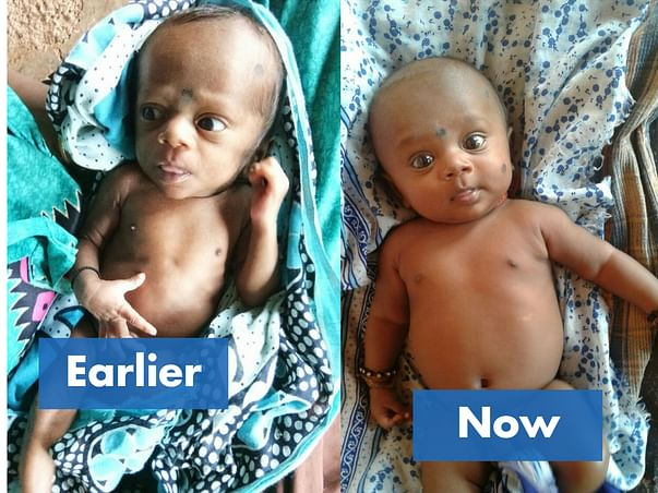 Save lives of 100 malnourished children in Palghar, Maharashtra.