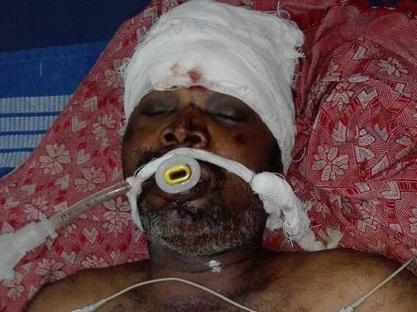 Help Sankar Recover From Road Accident