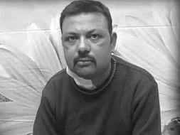 Help Vinay To Get His Kidney Transplant