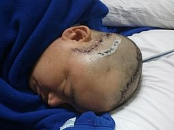 Help Dharma Lepcha Fight For His Life