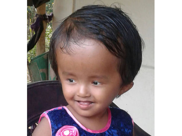 Help Little Reshmi Fight Hydrocephalus