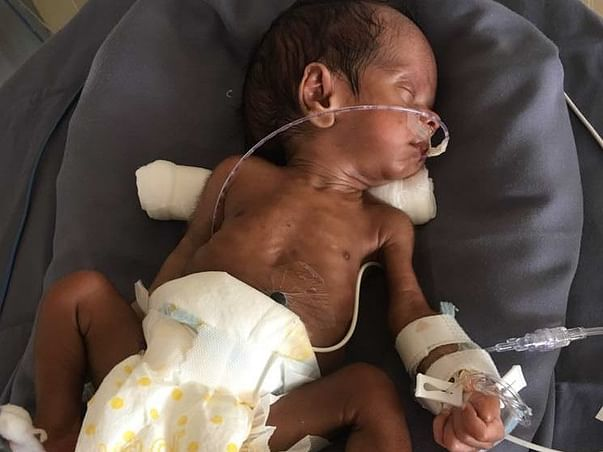 These Parents Need Your Help To Save Their Prematurely Born Baby Boy