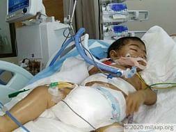 At 10 Months, Aizen's Survival Depends On An Urgent Liver Transplant
