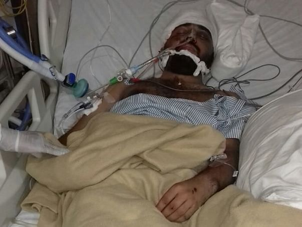 Help Aqib's family to pay for the brain surgery and other treatments.