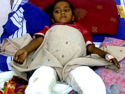 5-Year-Old Kavya Needs Urgent Surgery To Recover From Severe Burns