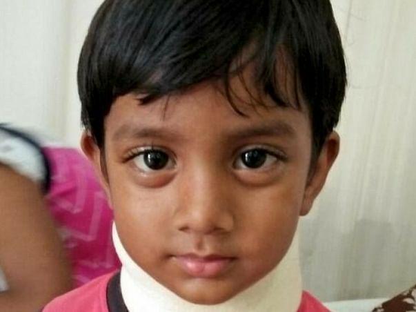 Help 3-yr old Srinu fight Cancer