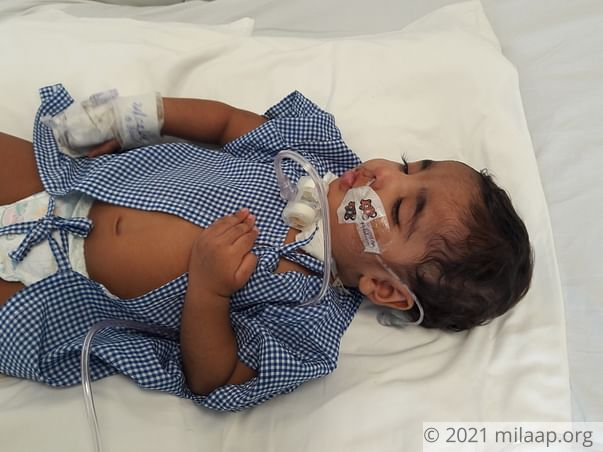 This Baby's Brain Presses On His Spinal Cord And He Chokes On His Food