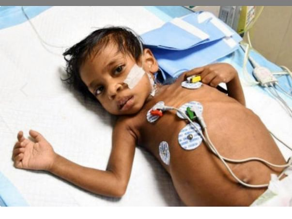 Please donate as much as you can to save my sis kid by Prakash