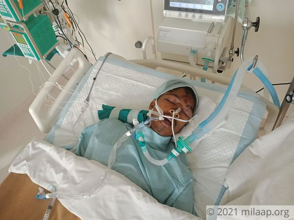 Help 19-year-old-Pratik fight in the ICU after a severe road accident