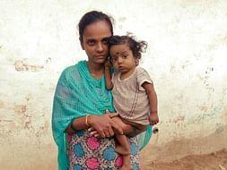 Please Help 1 Year Old Devansh Fight Biliary Atresia