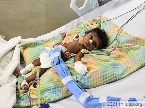 Help 9-month-old Elisha Who Has Lost 90% Of Her Small Intestine