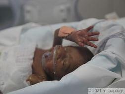 Help Sarmistha Save Her Premature Twin Babies