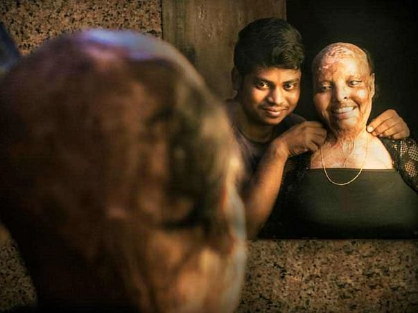 In the name of love for acid attack survivor Rani