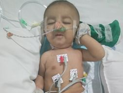 Help This 3-Month-Old Baby Who Is Fighting For His Life In The ICU