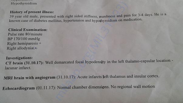 earlier stroke discharge summary