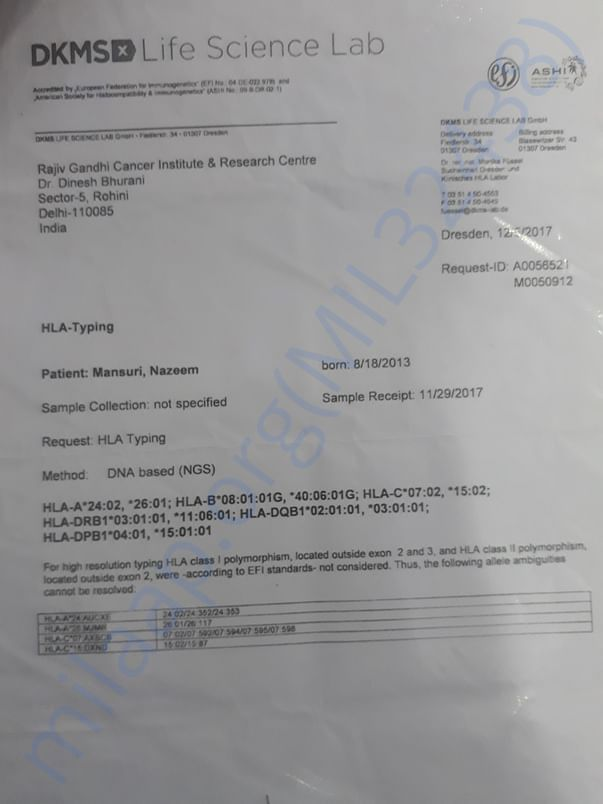 This is patient (nazim) HLA  REPORT