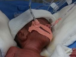 Help Madhurupam's Premature Twins Who Are Fighting For Their Life