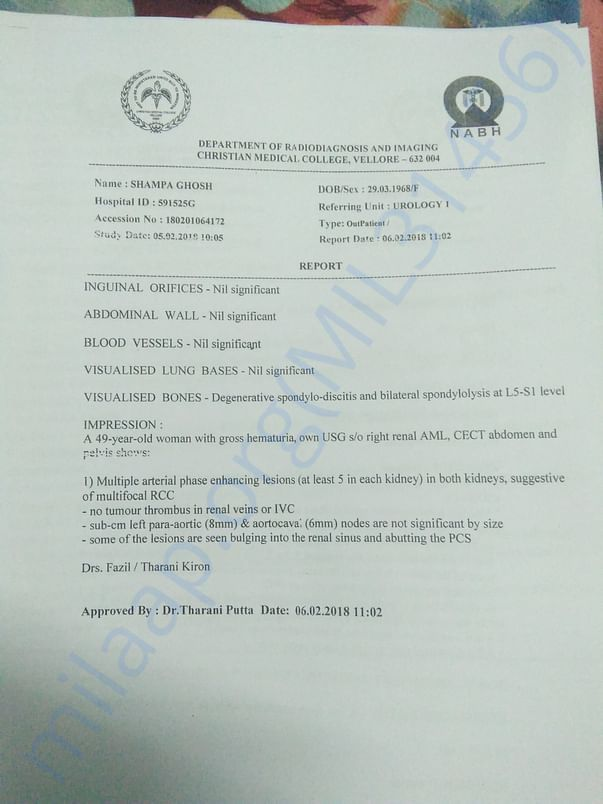 CT scan report from CMC Vellore suggested multiple RCC