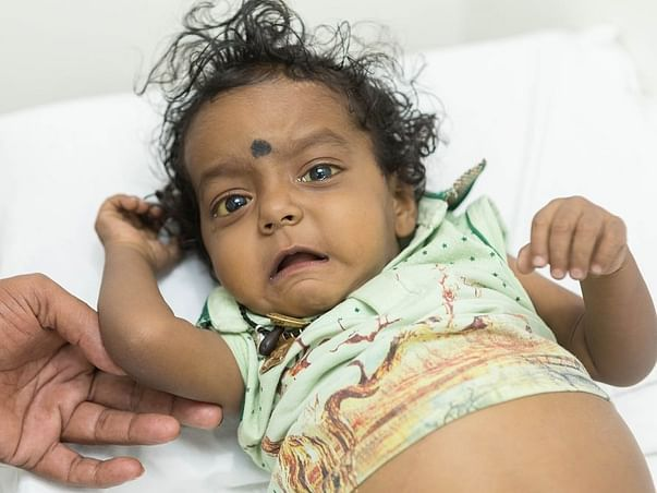 Please Help 1 Year Old Devansh Fight Biliary Atresia